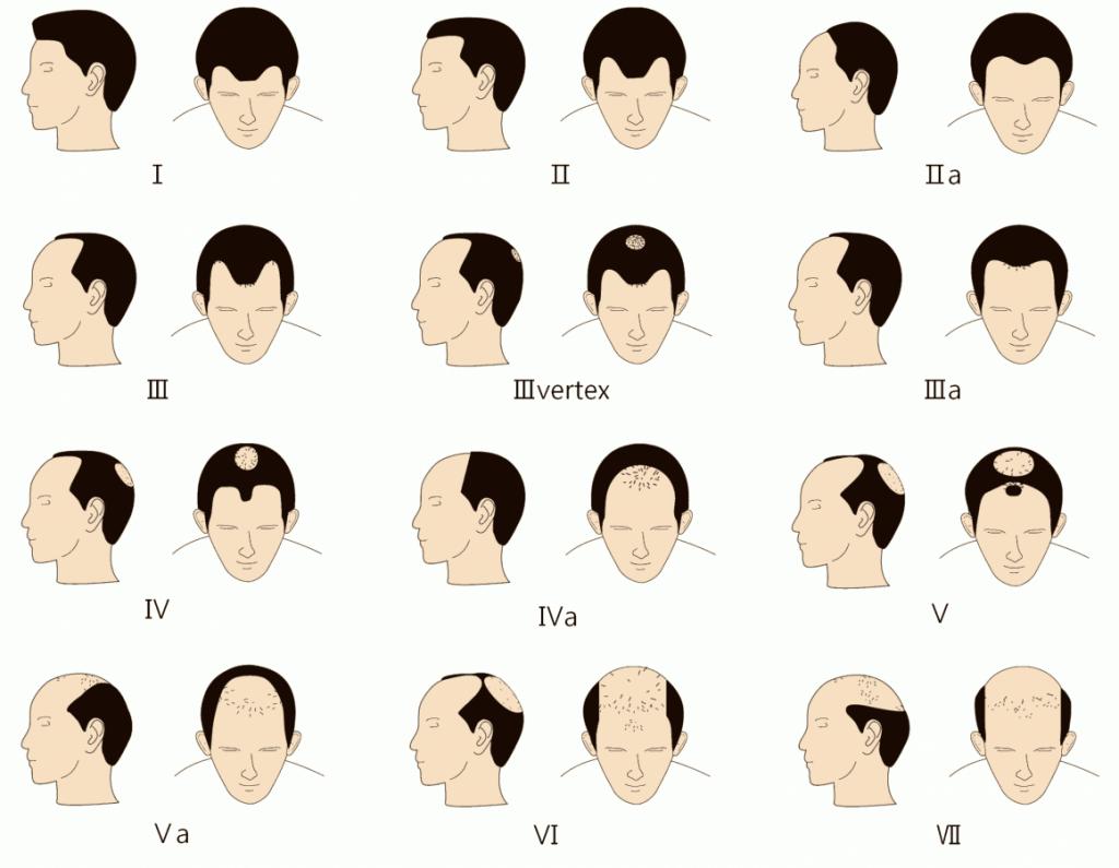 Receding hairline diagram
